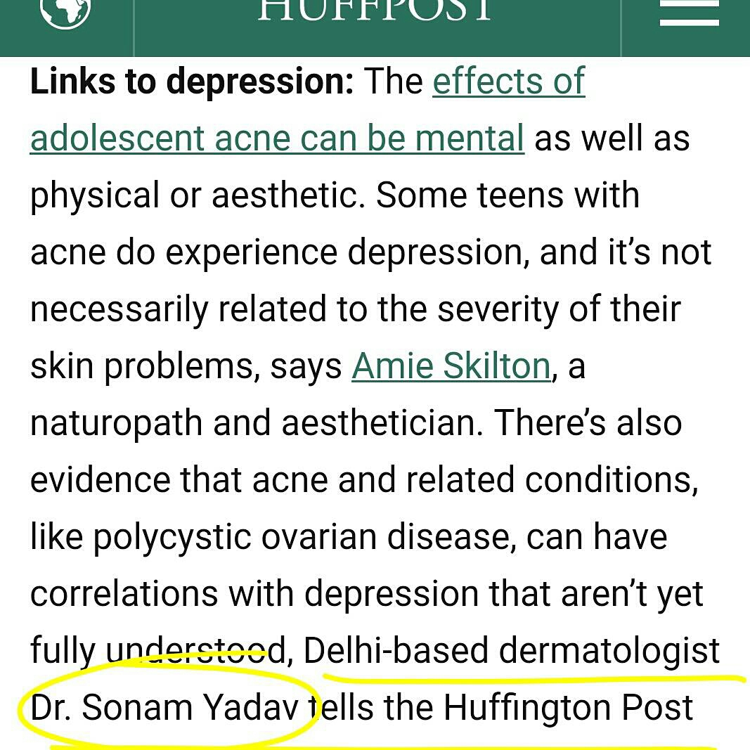 What are the links to depression?  There is plenty research evidence that acne causes decline in quality of life and may lead to stress, anxiety and depression. This is attributed to the impact of acne on a young person's appearance and its relation with self esteem. However emerging evidence also shows that acne and underlying causes themselves (such as Polycystic Ovarian Disease in young girls) could have a strong and complex correlation with depression. Complicating matters further is the side effect profile of some medication used for acne: specifically Isotretinoin (commonly known as Accutane) which is a potent and very helpful drug for severe acne, but has an established risk of causing/worsening depression and/or suicidal thoughts. It is unfortunate because the patients with most severe acne benefit the most from this treatment but may already be struggling with self esteem. However dermatologists are well versed with this side effect risk and do screen/counsel patients and family for the same.  See more at: instagram.com/DrSonamYadav/