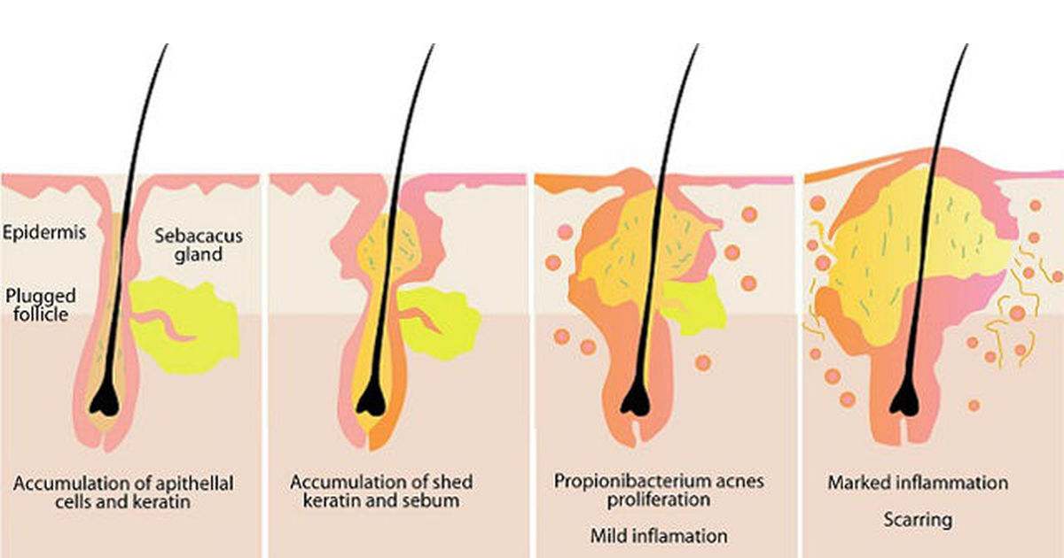PROGRESSION OF ACNE LESIONS
