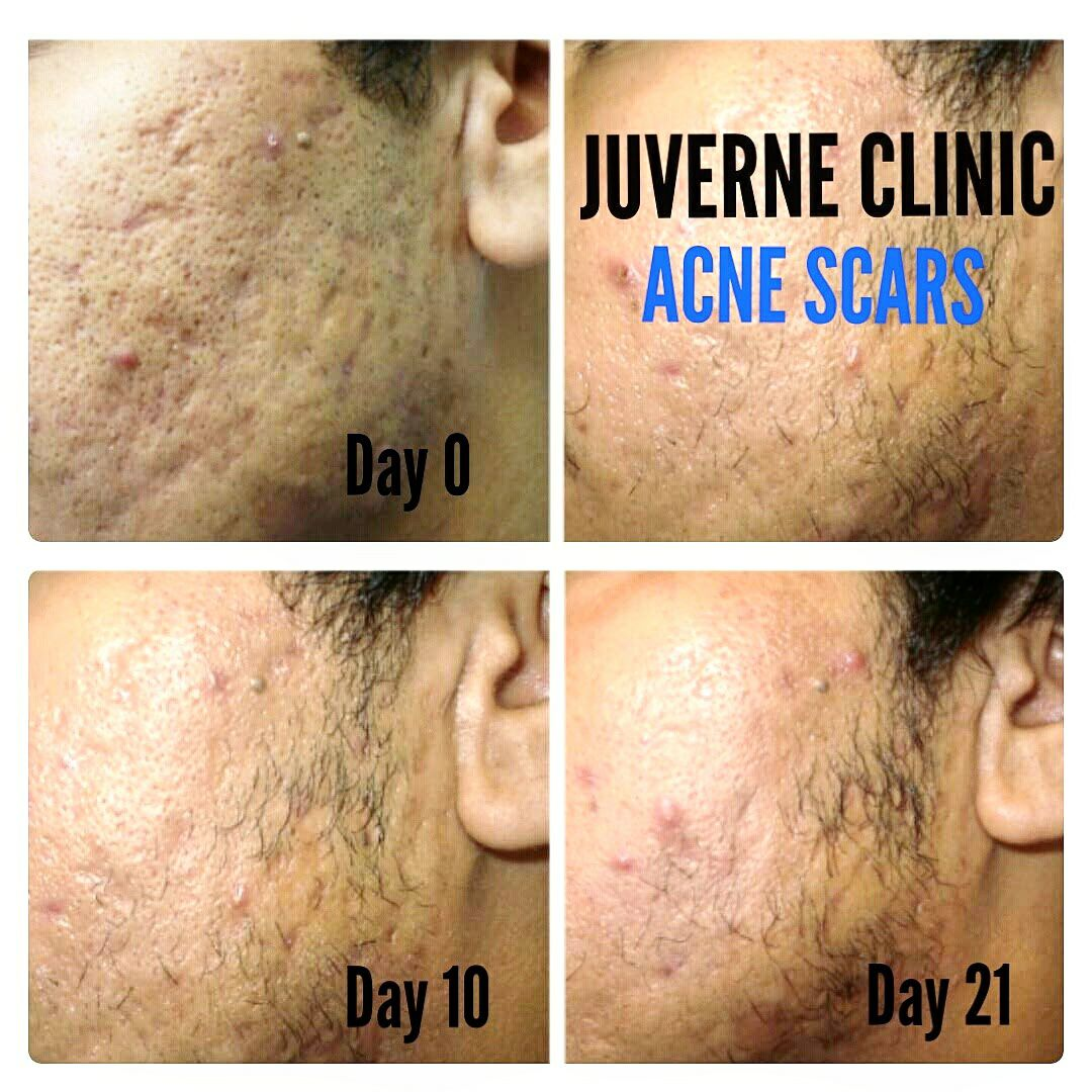 BEST ACNE SCAR TREATMENT IN DELHI
