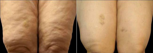 Cellulite above knee area
