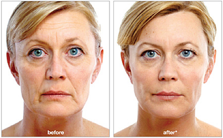 CHEEK VOLUME RESTORATION and HIGH SUPERMODEL CHEEKBONES - As we age the facial fat sinks and ligaments weaken, causing deep lines around the nose and moth and the formation of jowls. Weight loss, athletic activity and stress can also cause flattening of cheeks. VOLUMA & VOLIFT by Juvederm are excellent products to restore cheek contour, which last 1-3 years on average.ULTRAFORMER & ENDYMED can further help lift the cheek and FILLER injections can be used to soften wrinkles, reduce shadows and rejuvenate the whole face.SKINBOOSTER injections & MESOTHERAPY can substitute expert 'contouring make up' by highlighting specific areas & creating shadows & curves in others.