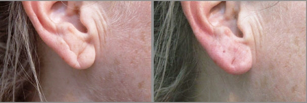 THE EARS - EARLOBE REJUVENATION is done with a combination of FILLER, laser brightening and ENDYMED radio frequency to improve skin quality and texture, in aged sun damaged ears. FILLERS are used to repair torn / sagging earlobes.UNWANTED HAIR can be easily removed with our USFDA approved award winning painless laser. 6 to 10 sessions are usually recommended.
