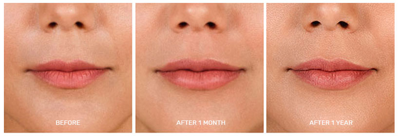 LIP AND SMILE DESIGN - Aging, smoking and sun damage make lips thinner, wrinkled and darker, with lengthening of the philtrum and flattening of the Cupid's bow - these can be treated with FILLERS, BOTOX, PRP & micro-needling or laser rejuvenation. Unwanted hair is easily treated with LASER & pigmentation with PEELS & facials. NASOLABIAL FOLDS (nose to mouth lines) and MENTOLABIAL FOLDS (mouth to chin lines) create a tired sad appearance. Lifting the skin with a combination of collagen boosting ENDYMED / ULTRAFORMER & FILLER softens/erases the lines. FILLER & BOTOX in the ala can help create the illusion of a slimmer nose.UPPER LIP thinness, asymmetry and vertical lines (aka smoker's lines) can be corrected with small doses of FILLERS. A small dose of BOTOX can also be used for a LIP FLIP to open up the lip, without filler.THE LOWER LIP can be lifted or augmented with individualized treatments with a variety of fillers for better symmetry or pinkness in men/women or creating a pout for young women.We use a custom approach with combination treatments for beautiful smile make overs & treatment of gummy / uneven unbalanced smiles.