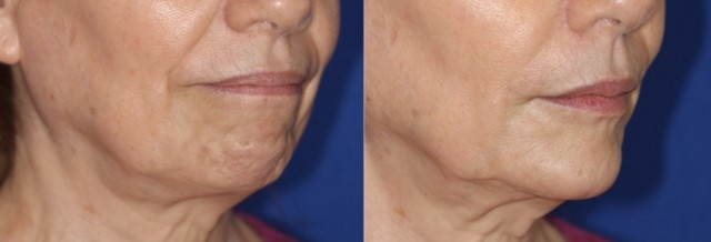 CHIN AND JAWLINE RESHAPING - The use of FILLERS and MESOBOTOX (NEFERTITI LIFT technique) helps to augment the chin and jawline, while reducing lines around the mouth and chin - to create a balanced, youthful appearance. A weak chin in men and women, makes the face look rounder and saggy. VOLUMA is an excellent filler which may last up to 3 years in this area, with good results.ULTRAFORMER and ENDYMED are useful for lifting saggy skin by building collagen - while FILLERS & SKIN BOOSTERS are used for supporting the skin and draping it better on the bone for an impressive, strong look.