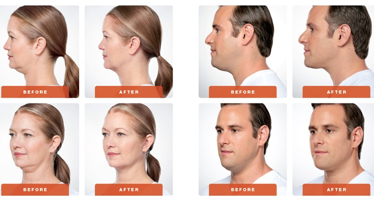 DOUBLE CHIN REDUCTION - Rounded facial contours, poorly defined jawline & excessive fat cause a blunting of facial features. Shaping treatments create an impression of weight loss.We have the most powerful FAT FREEZING technology at Juverne, which can chisel a bulky submental area in 1-3 sessions painlessly and permanently.We also offer KYBELLA / BELKYRA analogue deoxycholic acid fat dissolving injections that chisel the chin and jawline with permanent results in 1-3 sessions.We further use ENDYMED skin tightening, ULTRAFORMER lift and THREAD lifts to create a slimmer silhouette, along with BOTOX NEFERTITI LIFT for improving crepiness & draping skin better over a tighter jawline.