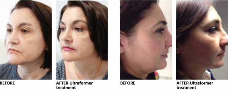BESPOKE COMBINATION SCULPTING - ULTRAFORMER is a quick single session annual face lift which is stronger, faster, better and more cost effective than other ultrasound technology counterparts. JUVERNE is the first and only clinic in New Delhi this treatment. We are also the first clinic to offer collagen boosting ENDYMED facials & the award winning INTENSIF microneedlingRF.