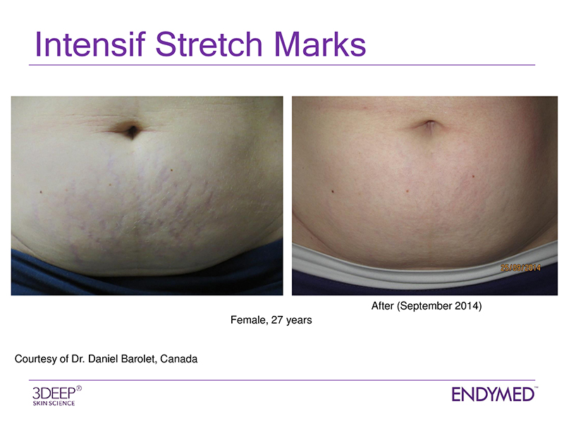 EARLY TREATMENT OF STRETCH MARKS - New stretch marks are red/purple due to the tearing of small blood vessels when skin stretches unduly; and the formation of new blood vessels during the active process of wound healing. Striae are most sensitive to new collagen formation at this stage, thus it is best to treat early. Old silver/white stretch marks need more treatments but can still be visibly improved.