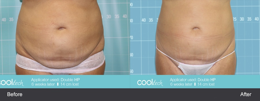 FAT FREEZING - CRYOLIPOLYSIS is a safe, effective and permanent method for removing bulges of fat on the face/body.