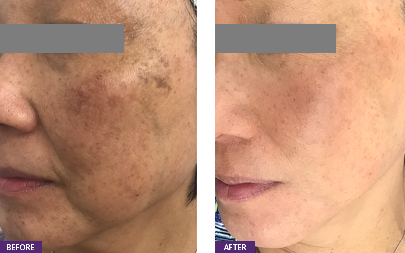 REGULAR SKIN CARE AND MAINTENANCE - CLARITY:Correction of hyper pigmentation & dark lips, neck, under arms - Skin lightening, correction of skin tone: spots, patchiness, dullness, tired skin. Removal of unwanted hair/ingrown hair/bumps.SKIN PIGMENTATIONWe treat various disorders of change in skin color - both exaggeration (hyper-pigmentation) and loss of pigmentation (hypo-pigmentation) to restore blemish free skin with even coloration.Each pattern of skin discoloration has multiple mechanisms and causes. We use custom well researched protocols for treatments and home care routines to target cause and step to ensure rapid correction of coloring. Common pigment problems:MELASMAPATCHY SKINFRECKLESACNE SCARSTAN LINESDARK KNEES AND ELBOWSDARK UNDER ARMS / NECKCommon triggers: Sun damage precipitates pigment problems especially in Asian skin, giving it a patchy uneven appearance. Hormonal changes, such as during pregnancy or menopause or when on birth control pills; sun exposure and light sensitizing medication can trigger the onset or worsening of melasma in men and women.FOR MELASMASingle Session Non Laser TreatmentsPigment Buster MasksMesotherapyMicro-needlingPrescription Home CareMaintenance Medical FacialsGentle Gel Chemical Peels
