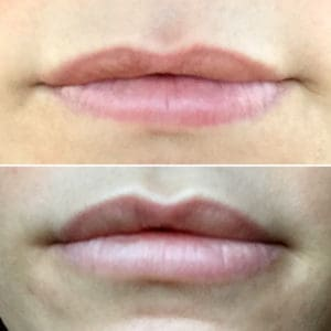 BOTOX LIP POP | JUVERNE