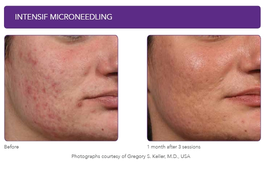 COLLAGEN BOOSTERS - TEXTURE CORRECTION: Smoother skin, with tighter pores using physical, mechanical and chemical skin resurfacing treatments. Correct acne, scars, open pores, roughness, marks, milia and bumps.