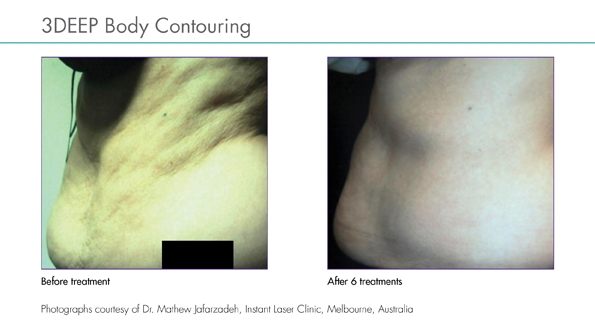 SKIN TONE - Skin tightening and toning of sagging loose skin after pregnancy or significant weight loss, due to ageing or changes in facial / body contour from incorrect / incomplete treatments elsewhere.