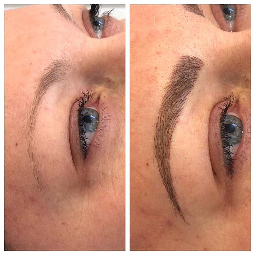 MICROBLADING OF BROWS & SCALP