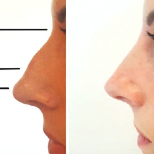 Image Source:  https://aestheticsjournal.com/feature/non-surgical-rhinoplasty-1