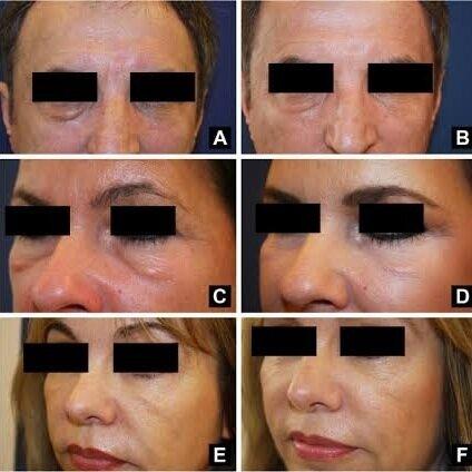 Image Source:  https://journals.lww.com/dermatologicsurgery/Abstract/2010/07000/Hyaluronidase.1.aspx