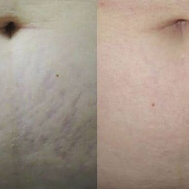 INTENSIF FOR STRETCH MARKS