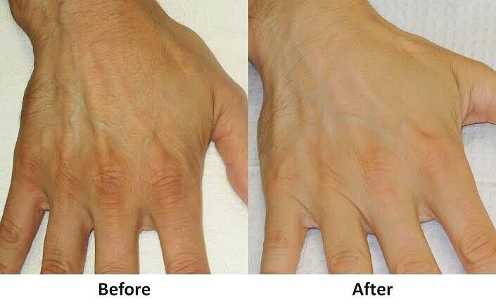 vol+hands.jpg