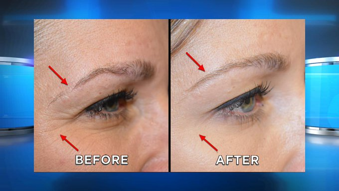 Eyebrow Thickening Using PRP Extracts From Blood