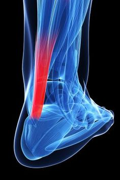 """Achilles Tendonitis/Tendinopathy and Needling    Achilles pain. You can't live with it and you can't live with it. Can needling help? The obvious answer is yes, but there is more as well.    There appears to be sufficient data to support the use of needling for achilles tendon problems. Perhaps it is the """"reorganization"""" of collagen that makes it effective or a blood flow/vascularization phenomenon.The mechanism probably has something to do with pain and the reticular formation sending information down the cord via the lateral cell column (intermediolateral cell nucleus) or pain (nociceptive) afferents sending a collateral in the spinal cord to the dysfunctional muscle, affecting the alpha receptors and causing vasodilation.  Loss of ankle dorsiflexion is a common factor that seems to contribute to achilles tendinopathies.It would seem that improving ankle rocker would be most helpful. In at least one study, needling restored ankle function and in another it improved strength.  And don't forget to go north of the lower leg/foot/ankle complex. The gluteus medius can many times the culprit as well. During running, the gluteus medius usually fires before heel strike, most likely to stabilize the hip and the pelvis. In runners with Achilles Tendonitis, its firing is delayed which may affect the kinematics of knee and ankle resulting in rear foot inversion. Perhaps the delayed action of the gluteus medius allows an adductory moment of the pelvis, moving the center of gravity medially. This could conceivably place additional stress on the achilles tendon (via the lateral gastroc) to create more eversion of the foot from midstance onward.   Similarly, in runners with achilles tendoinopathy, the gluteus maximus does not fire as long and activation is delayed. The glute max should be the primary hip extensor and decreased hip extension might be compensated by an increased ankle plantarflexion which could potentially increase the load on the Achilles tendon.  So, in short, ye"""