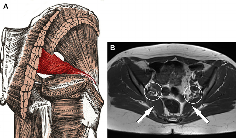 """Great, FREE FULL TEXT article on the hip.  an EXCELLENT review with some great rehab tips at the conclusion like this  """"Once isolated contraction of the deep external rotator muscles is successfully achieved, progression can be made to the rehabilitation of secondary stabilisers and prime movers of the hip, particularly the gluteus maximus, initially using nonweight bearing exercises and progressing to weight bearing exercises once motor control and strength allows. Pre-activation of the deep external rotators may make these exercises more effective. Deficits in flexibility and proprioception should also be addressed at this stage. Once adequate hip muscle strength and endurance is achieved, functional and sports specific exercises can then be implemented. """"  Can local muscles augment stability in the hip?: A narrative literature review T.H. Retchford, K.M. Crossley, A. Grimaldi , J.L. Kemp, S.M. Cowan J Musculoskelet Neuronal Interact 2013; 13(1):1-12   http://www.ismni.org/jmni/pdf/51/01RETCHFORD.pdf   image from:  https://www.researchgate.net/…/258427127_fig12_Fig-11-Anato…"""