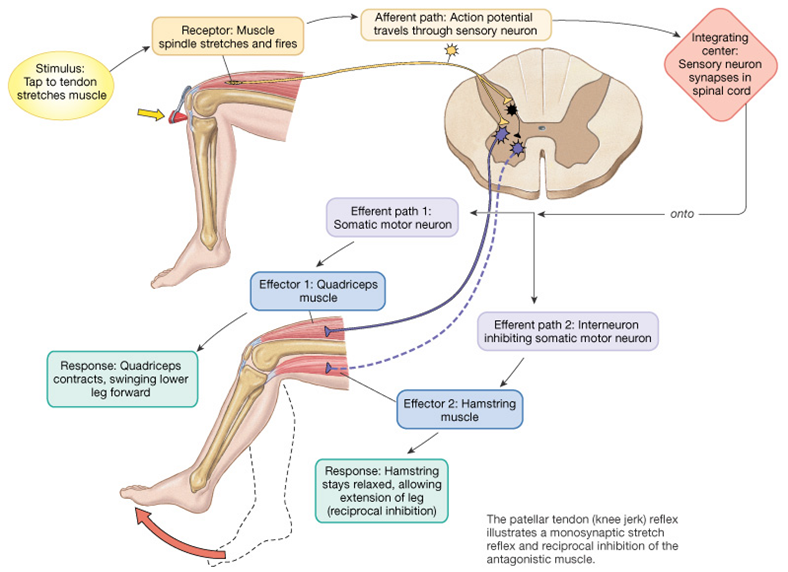 """Taking advantage of the stretch reflex and reciprocal inhibition; or the """"reverse stretch""""   Reciprocal inhibition is a topic we have spoken about before on the blog ( see here ). The diagram above sums it up nicely. Note the direct connection from the spindle to the alpha motor neuron, which is via a Ia afferent fiber. When the spindle is stretched, and the pathway is intact, the uscle will contract. What kind of stimulus affects the spindle? A simple """"stretch"""" is all it takes. Remember spindles respond to changes in length.  So what happens when you do a nice, slow stretch?  You activate the spindle, which activates the alpha motor neuron. If you stretch long enough, you may fatigue the reflex.  So why do we give folks long, slow stretches to perform?  Certainly not to """"relax"""" the muscle!     How can we """"use"""" this reflex? How about to activate a weak or lengthened muscle?  Good call.   Did you notice the other neuron in the picture? There is an axon collateral coming off the Ia afferent that goes to an inhibitory interneuron, which, in turn, inhibits the antagonist of what you just stretched or activated. So if you acitvate one muscle, you inhibit its antagonist, provided there are not too many other things acting on that inhibitory interneuron that may be inhibiting its activity. Yes, you can inhibit something that inhibits, which means you would essentially be exciting it. This is probably one of the many mechanisms that explain spasticity/hypertonicity   How can we use this?  How about to inhibit a hypertonic muscle?  Lets take a common example: You have hypertonic hip flexors. You are reciprocally inhibiting your glute max. You stretch the hypertonic hip flexors, they become more hypertonic (but it feels so good, doesn't it?) and subsequently inhibit the glute max more. Hmm. Not the clinical result you were hoping for?    How about this:  you apply slow stretch to the glutes (ie """"reverse stretch"""") and apply pressure to the perimeter, both of which activate the"""