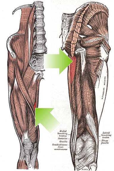 """Thoughts on the adductor grouping to ponder.   I found this while prepping for the dry needling course I am teaching this weekend and thought you may enjoy it. Though the primary actions of the addcutors are well established, secondary actions (whether they are acually internal or external rotators) remains to be elucidated.   Here is a nice abstract that supports the dynamic function of them as external rotators (eccentrically) during gait.  """"Anatomical texts agree on most muscle actions, with a notable exception being the action of the adductors of the hip in the transverse plane. Some texts list an action of the adductor brevis (AB), adductor longus (AL), and/or adductor magnus (AM) as internal rotation, whereas others list an action of external rotation. The purpose of this article is to present a functional model in support of the action of external rotation. Transverse plane motion of the femur at the hip during normal gait is driven by subtalar joint motion during the loading response, terminal stance, and preswing phases. During the loading response, the subtalar joint pronates, and the talus adducts. This talar adduction results in the lower leg, and subsequently the femur, internally rotating. During terminal stance and preswing, the opposite occurs; the subtalar joint supinates as the talus abducts in response to forces generated from the lower extremity and in the forefoot. Electromyographic (EMG) studies indicate varied activity in the AB, AL, and AM during the loading response, terminal stance, and preswing phases of the gait cycle. A careful analysis of EMG activity and kinematics during gait suggests that, in the transverse plane, the adductors may be eccentrically controlling internal rotation of the femur at the hip during the loading response, rather than the previously reported role as concentric internal rotators. In addition, these muscles may also concentrically produce external rotation of the femur at the hip during terminal stance and presw"""
