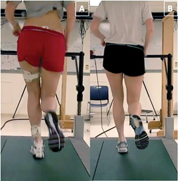 """Does gait (re)training alter peoples biomechanics?   You bet it does! Should we be retraining peoples gait? We like to think, yes. What do you think?  """"Overall, this systematic review shows that many biomechanical parameters can be altered by running modification training programmes. These interventions result in short term small to large effects on kinetic, kinematic and spatiotemporal outcomes during running. In general, runners tend to employ a distal strategy of gait modification unless given specific cues. The most effective strategy for reducing high-risk factors for running-related injury-such as impact loading-was through real-time feedback of kinetics and/or kinematics.'  Br J Sports Med. 2015 Jun 23. pii: bjsports-2014-094393. doi: 10.1136/bjsports-2014-094393. [Epub ahead of print] Gait modifications to change lower extremity gait biomechanics in runners: a systematic review. Napier C1, Cochrane CK1, Taunton JE2, Hunt MA1."""