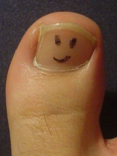 """Big Toe Woes: One way to learn to load the head of the 1st metatarsal   On Thursday morning, while sprinting up a hill on the latter part of a run, I had the fortuosity of catching my big toe on what I beleive was an exposed root and fell sudddenly. Instinctively I rolled to protect my back (as you often do if you have had any history of back injuries). After a few expletives and a bruised ego, I took inventory of my body: back was fine, an abrasion and contusion on my left elbow and a really sore big toe. I got up and decided to run home as I was less than a mile from there.   I immediately noticed that my gait would need to be altered if I was going to make it home. I had injured the distal interphalangeal joint and distal phalanyx from the best I could tell; loading them in any way brought excruciating pain, so I was forced into one of my mantra's: """"Keep your toes up""""*. I did this for the rest of my run and noticed, probably more than ever, how much this simple technique shifts the weight to the head of the 1st metatarsal and sesamoids. It also made me make my gait more """"circular"""" (rather than pendular, another thing we teach in gait retraining).   I made it home and promptly iced. After getting to the office, an X ray confirmed my suspicion of a fracture in the proximal portion of the distal phalanyx. A day later and from my distal to my 1st metatarsal phalangeal joint is sausage like and a beautiful violet color. I am grateful I did not seem to injure the MTP…Oh well, I will either have to run carefully or switch to mountain biking for the next few weeks. Some ipriflavone (to assist in calcium absorption), cucumin and essentail oils (for inflammation) and I was good to go. Yes it throbs a bit, but it is a reminder that I need to push off through the head of the 1st : )  Try """"toes up""""with your peeps and let us know how it goes.   TGG  * """"Toes up"""" technique involves conciously firing the anterior compartment muscles, particularly the extensor digitorum longus. It"""