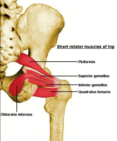 """Ischial-femoral impingement: you have to know what it is to make the diagnosis and know how to treat it.   How many times have you had a client come in with pain high up in the ischial area, often explaining that it feels like a high hamstring pull. Others come in and say they have deep gluteal pain, deep in the buttock near the """"sit bones"""".  Often they do not have a """"hamstring-type event"""" that could be the cause of this injury or pain.  I see this """"high hamstring"""" pain often in runners, mostly distance runners but in high velocity cutting sports as well.  I see this one often, and it was a difficult fix until I recognized what it truly was and what was generating the pain and problem.  Often the problem is at the quadratus femoris muscle. This muscle has an origin off of the ischial tuberosity and inserts into the trochantric interval. The problem arises when the space, the interval, between these bony prominences is closed causing the quadratus femoris to become compressed or pinched in the small space. This can occur from too much frontal plane drift of the pelvis (side shift/drift) and this is almost always met by a relative adduction of the femur.  This adduction narrows the space.  Frontal plane drift of the pelvis and adduction of the femur, as either genu valgum or a cross over gait, are highly suspicious culprits in getting to the bottom of this clinical entity.  Do you know how to test and evaluate the quadratus femoris muscle ? How about the similarly functioning obturator externus, upper vastus medialis or iliac division of the gluteus maximus ? Can you reasonably tease them out on your physical examination?  If you know the common motion amongst them all you will know why they all can be a culprit of the pain and impinging mechanism, and why in treating this problem you likely will have to evaluate and treat one or more of them since they all support external rotation of the femur especially in varying degrees of hip flexion, and thus are used eccentric"""