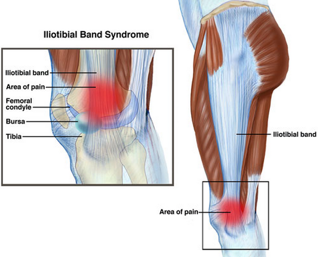 """So you think you are an iliotibial band syndrome guru ? This study has some interesting provoking thoughts about the mechanics we have all previously assumed. It is good to challenge established teachings, for it is only through interrogating old ways that we may see the true light of things.      The iliotibial band (ITB) syndrome is a common overuse injury that is commonly misunderstood. It has been regarded as a friction syndrome where the ITB rubs against he lateral femoral epicondyle because of its previously assumed variable function, below 30 degrees knee extension it has been though to act as an extensor of the knee, and above 30 degrees (ie more knee flexion) it has been thought to act as flexor. It is thought to be a culprit (with the biceps femoris) of the shift phenomenon in the """"pivot shift test"""" for posterolateral rotatory instability of the knee (PLRI). Here is an interesting perspective from a 2006 journal article.     """"In all cadavers, the ITB was anchored to the distal femur by fibrous strands, associated with a layer of richly innervated and vascularized fat. In no cadaver, volunteer or patient was a bursa seen. The MR scans showed that the ITB was compressed against the epicondyle at 30° of knee flexion as a consequence of tibial internal rotation, but moved laterally in extension. MR signal changes in the patients with ITB syndrome were present in the region occupied by fat, deep to the ITB. The ITB is prevented from rolling over the epicondyle by its femoral anchorage and because it is a part of the fascia lata. We suggest that it creates the illusion of movement, because of changing tension in its anterior and posterior fibres during knee flexion. Thus, on anatomical grounds, ITB overuse injuries may be more likely to be associated with fat compression beneath the tract, rather than with repetitive friction as the knee flexes and extends.""""      We found this article interesting because it challenges many thoughts about its actual movement, (""""i"""