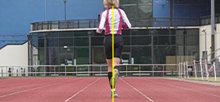 Take a look at this gal.    Why does she have a cross over gait?    note how much tibial varum she has (curvature of the tibial in the coronal plane)   how much adduction of the right foot there is, potentially indicating a tight posterior compartment, or perhaps a loss of internal rotation of the right thigh   the excessive posterior rotation of the left shoulder and upper body   the subtle abduction of the right arm compared to the left   the slight torso lean to the left    The correct answer is we don't know until we examine her. Maybe is is there out of necessity or perhaps it is a more efficient running style for her. Here are some points:    Technical Issues with the crossover gait    The cross over gait may be:    a more efficient running style   a potential pathologic musculoskeletal motor pattern   better for long distance runners   a challenge to balance because of a narrower base of support    It may also be related to:    a weak gluteus medius   weak adductors   excessive foot pronation   lower extremity morpholgy (like tibial varum, forefoot varus)   a weak vastus medialis   a weak tibialis posterior   and the list goes on    Join us, tomorrow, Wednesday evening, 8pm EST, 7 CST, 6 MST, 5PCT for an hour of crossover gait on chirocredit.com or onlinece.com for Biomechanics 316. We look forward to seeing you there..   The Gait Guys: Shawn and Ivo