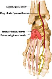 Did you know that the EHB (extensor hallucis brevis) the topic of today's video tutorial, originates off of the forepart of the medial aspect of calcaneus & lateral talocalcaneal ligament. It is just above the bulk origin of the EDB (extens   or digitorum brevis). It is frequently torn/strained in ankle inversion sprains and frequently goes undiagnosed. It can be torn/avulsed from the bone if the inversion sprain is focused below the lateral ankle joint. This occurs mostly when the foot is more plantarflexed before the inversion event. A foot cannot afford to have an impaired big toe ! Don't miss this one !