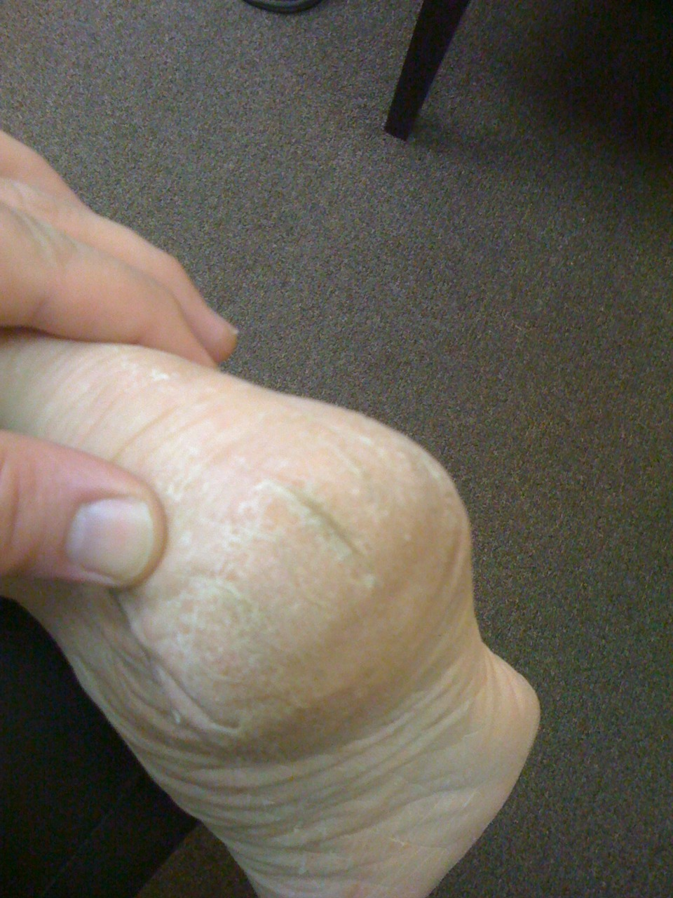 "Is that dry skin on your feet ? Lotions not working ? It is a yeast infection !   How many times will you smash your forehead into a wall before you realize that the bleeding suggests it might not be a good idea to continue ?   Similarly, how many times are you going to put lotion on your feet, or pumice off the dry skin and callouses before you ask ""maybe this isn't dry skin after all !"" ?   Do your feet have something similar as to what is seen in the photo above ? Do your heels look like this ? Do they have the deep fissured cracks ? Do you have similar powdery white appearing stuff on your feet ? Are lotions not taking care of all this ""apparently dry"" skin ?   Candida albicans is a yeast that lives in harmony in and on our body until something throws off the delicate balance, causing the fungus to proliferate wildly. When Candida is allowed to build up in the body, over time a wide variety of severe symptoms can occur. Without proper treatment, the yeast overgrowth can be extremely dangerous.   Candida buildup in any one place in or on the body indicates that a balancing act is off when it comes to normal body system regulation. Candida overgrowth can cause cognitive problems, genitourinary, gastrointestinal, allergic and even (as we see here) dermatological problems. The skin is the body's largest organ and it is also susceptible to problems.   Sometimes referred to as Athletes foot, in this case a fungus, it spreads easily through contact. Exposure to the fungus does not guarantee its growth and conditions must be right for the fungus to spread. Athletes foot is a fungal infection of the skin of the feet, which can also involve reactions by the feet and skin to toxins produced by candida/fungus overgrowth.         Red and/or pale skin.   Mild to intense itchiness, mostly in between the toes.   Burning and inflammation.   Cracked or blistered skin.   Skin patches and scaling of the skin.   Skin fissures (small cracks).   Toenails may become affected as athlete's foot progresses causing thick yellowish nails that are malformed, thickened and crumbly, called onychomycosis.   Fingernails can also become affected just like toenails.    Fungus on the feet can also develop into or enable other opportunistic issues such as calluses, corns, warts, and horny growths, or keratotic tissue (hardened horny growths or build-up). Active growth of the fungus is also supported by nutrients contained in such horny growths.     Now do not dismiss this apparently benign problem. We have had patients experience bleeding from these deep fissures and cracking and   we even had one client have one of these bleeding fissures get infected with Staph Aureus and almost lose their entire leg from the ""flesh eating bacteria"".   So we do not take this apparently benign infection lightly and we suggest you not either.   Find a doctor that will properly diagnose the problem and then look deeper for signs and symptoms that indicate where in the body the imbalance is located. We have found it is usually a GI (gastrointestinal) tract problem, one of dysbiosis (normal flora imbalance) in the bowels.      Yeast and fungal infection, they are definitely not just for athletes alone.  If you have it, it is in all of your shoes, on your shower floor, and anywhere it can harbor growth. But do not freak out. Just take care of the problem and move on. It is a mere several weeks to months to remedy. Just get the right solution for the job.  When it comes to yeast we suggest 2% miconazole cream (yes, vaginal yeast cream) be trialed, but it isn't a fix if that is not the problem.  See someone who knows. Sadly the yeast problem is missed by most in the field, we have no idea why but it is.      Shawn and Ivo…….not just your regular foot geeks.      Read more:  Signs & Symptoms of Candida Buildup in the Human Body 