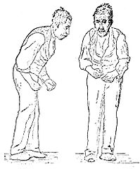 199px-Sir_William_Richard_Gowers_Parkinson_Disease_sketch_1886.jpg