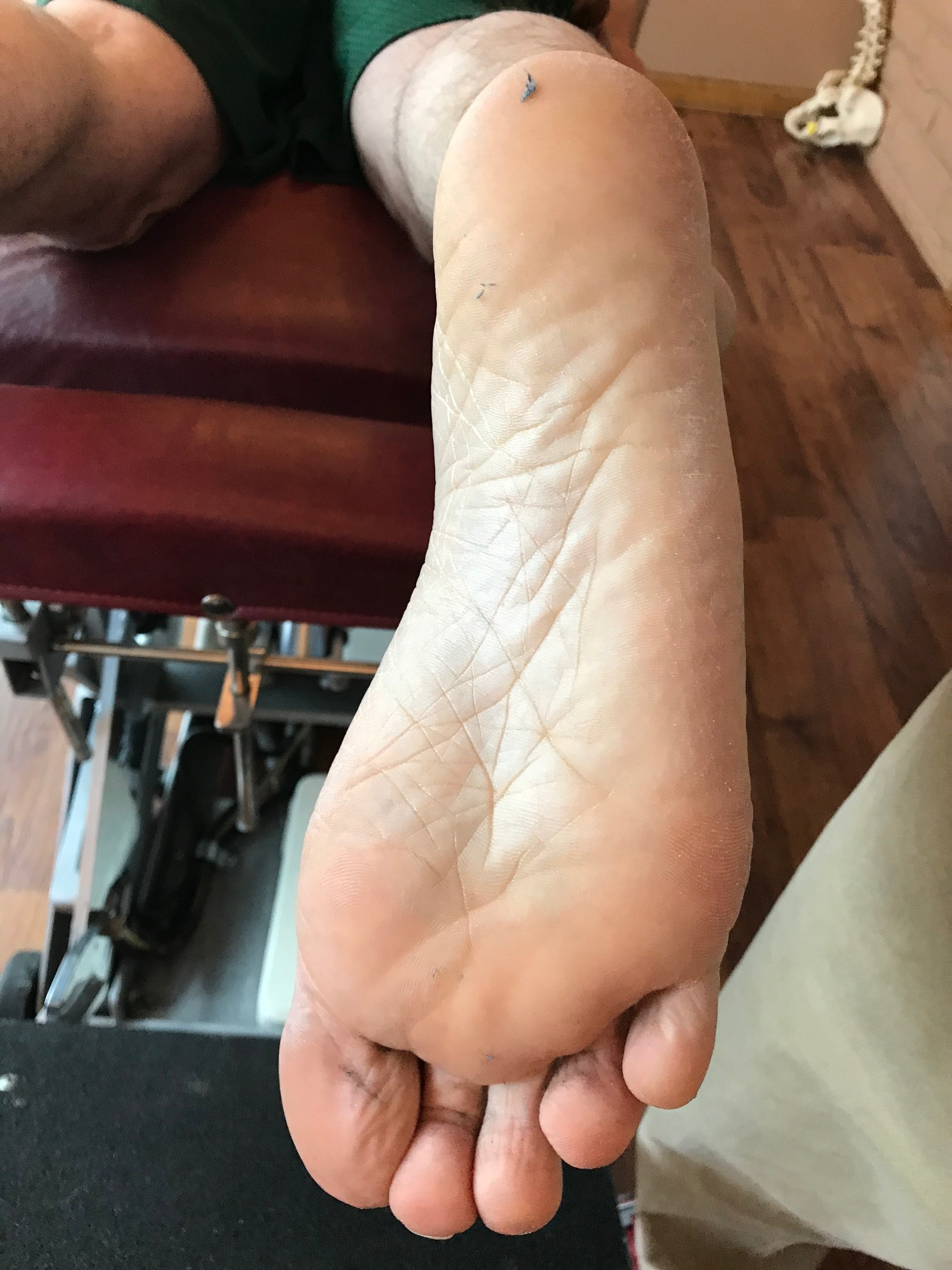 a line bisecting the calcaneus should pass between the 2nd and 3rd metatarsal shafts. If talar tosion was present, the rearfoot would appear more adducted