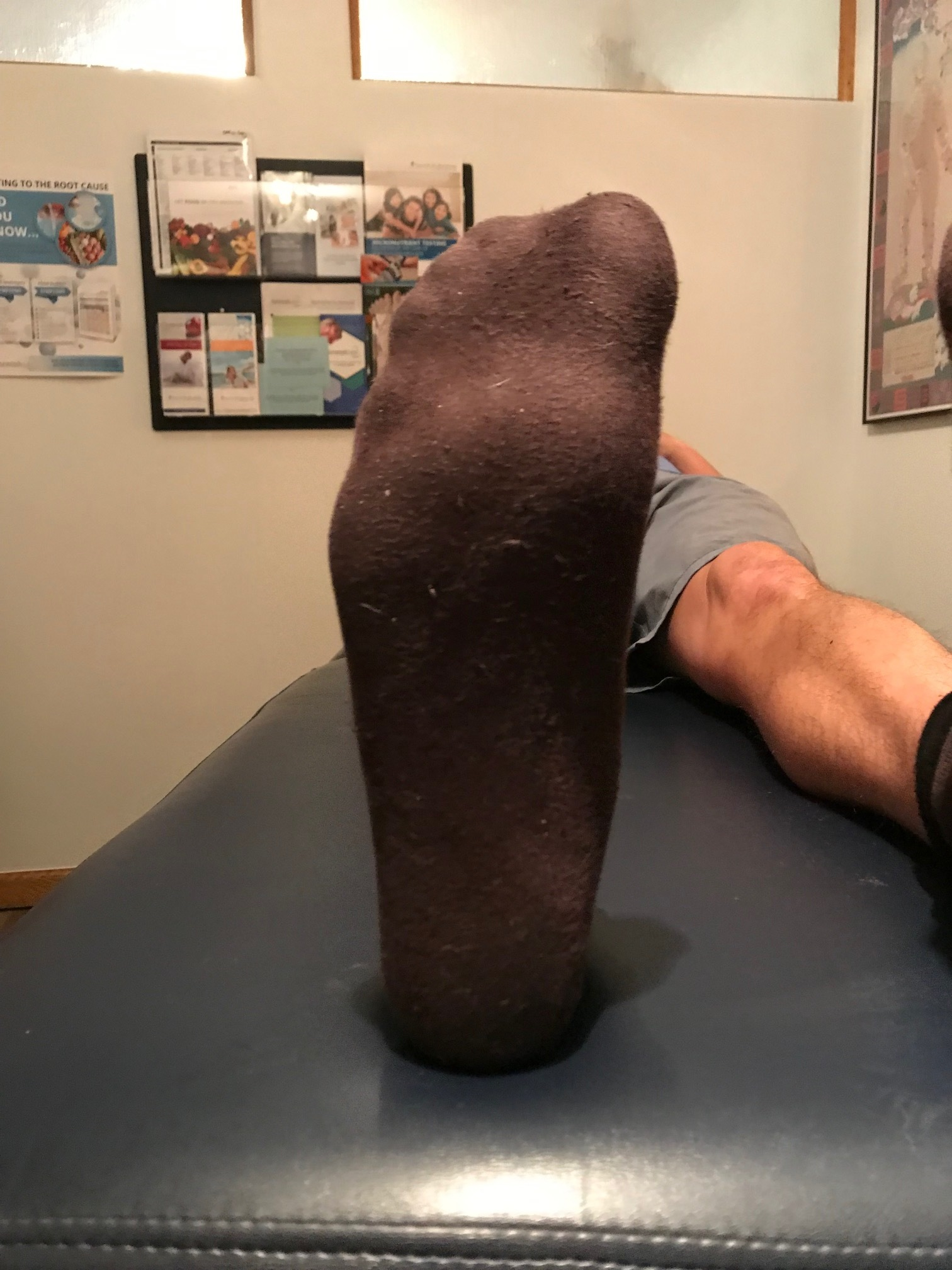 bisect the calcaneus. the line should fall though the 2nd metatarsal or between the 2nd and 3rd met shafts