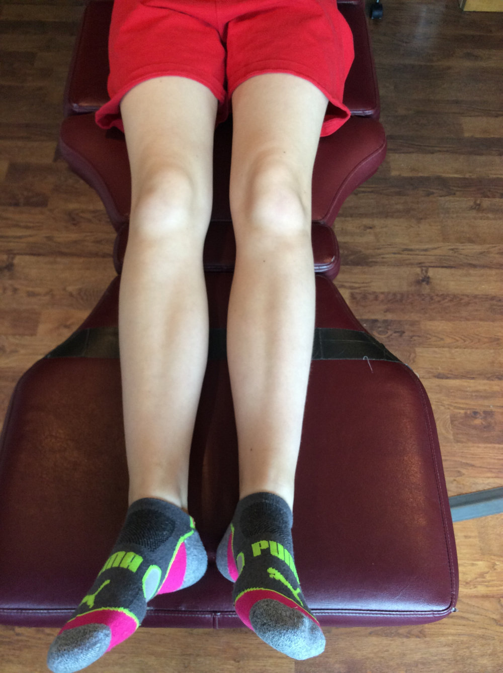knees neutral, note external rotation of the right foot and decreased progression angle