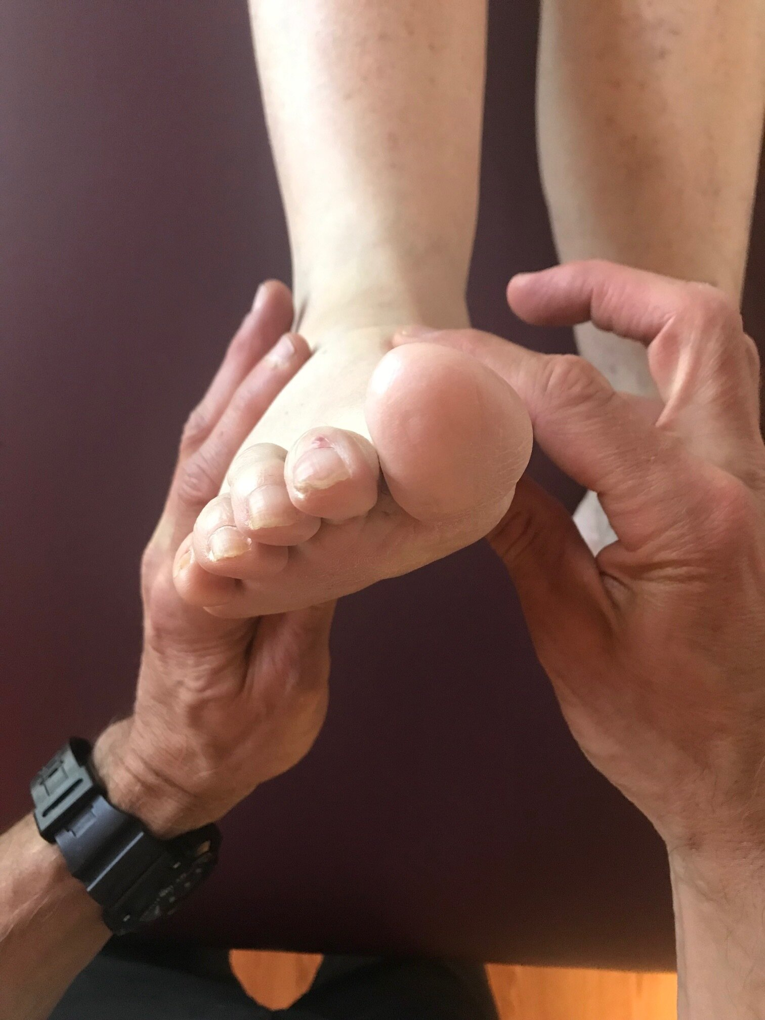 forefoot varus: note how the forefoot is inverted with respect to the rear foot