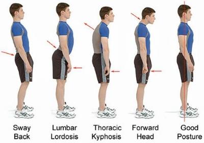bad-posture-types.jpg