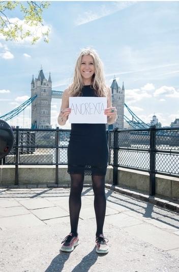 Hope Virgo anorexia headshot