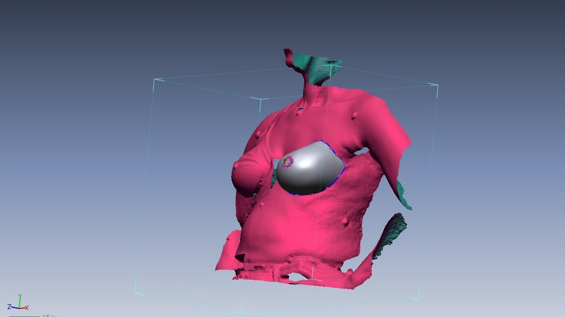 Example of 3-D scanning technology provided by ABC