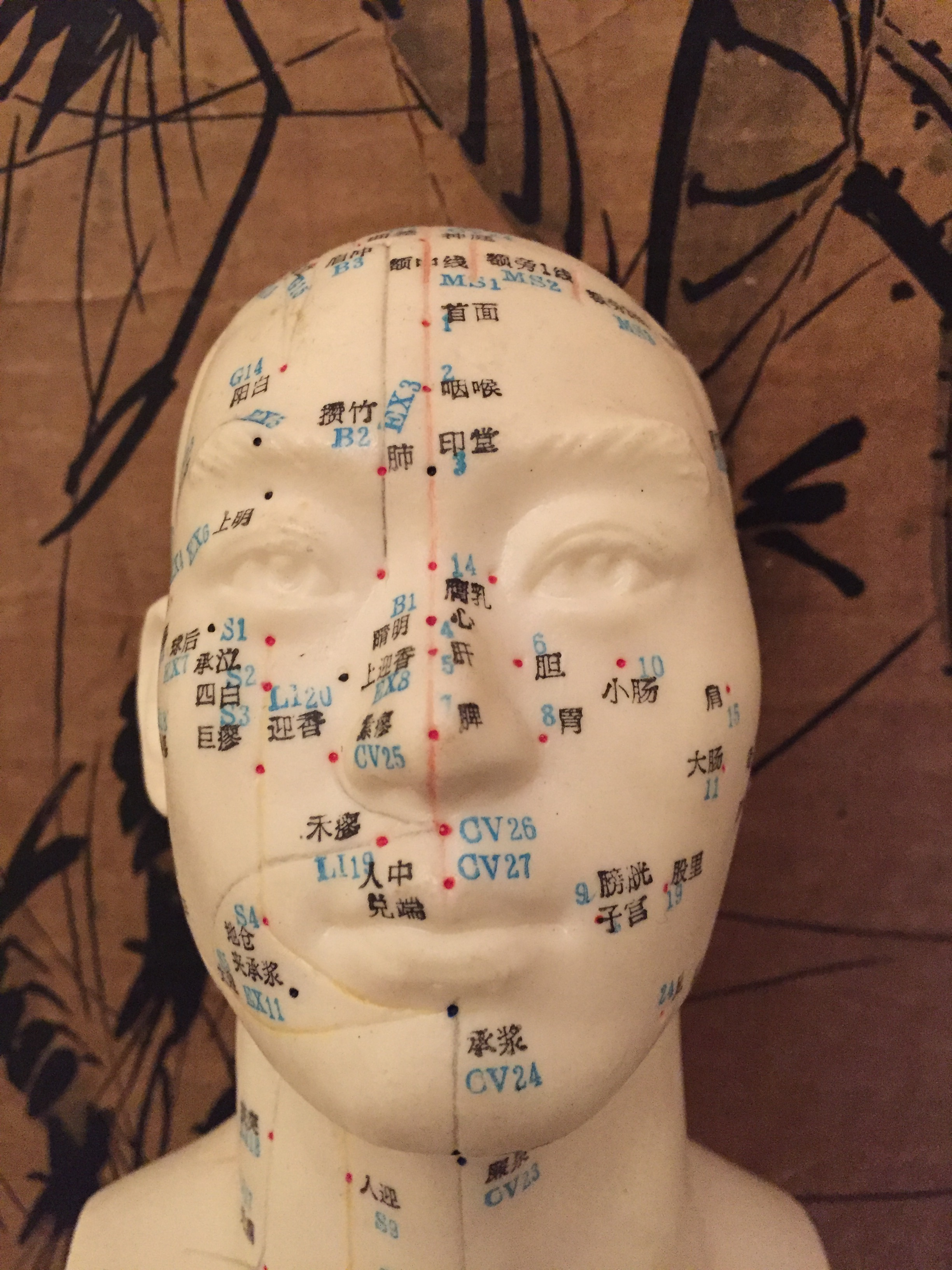 Single needle acupuncture.jpg