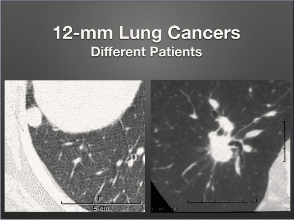 lung cancer in patients