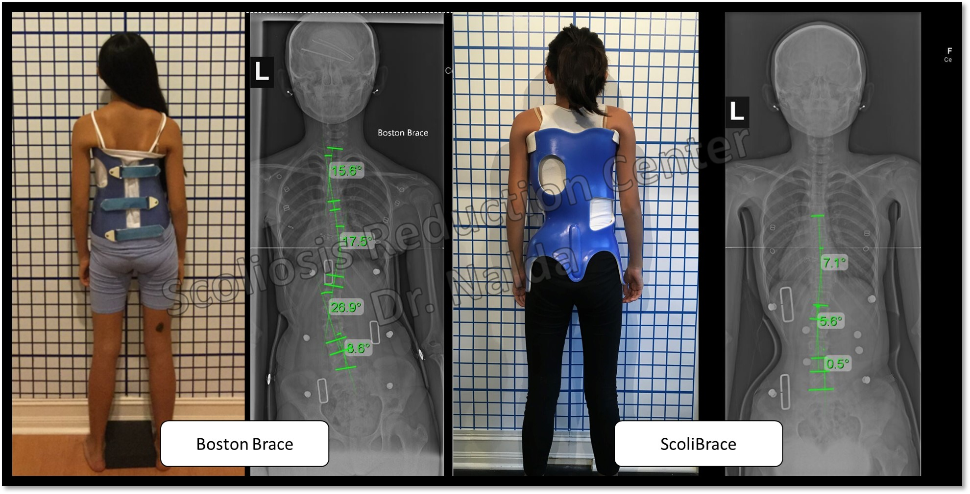 Treatment Approach — Scoliosis Reduction Center