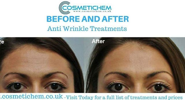 Constant contraction of the frontal muscle and elevation of the eyebrows will worsen with age. Parallel lines will start to appear on your forehead. These lines mostly show a sign of ageing. We are able to offer anti-wrinkle treatment (such as Botox®) to make these lines smoother and less visible. If you would like to know more about the treatment process please visit our website: www.cosmetichem.co.uk. . . . #botoxtreatment #skinbotox #radiantskin #youthful #skincare #softskin #skincaretips #healthyskin #antiaging #facialtreatment #beautifulskin #Cosmetichem #filler #beauty #restylane #juvederm #dysport #clinic #skincare #allergan #collagen #antiaging #fillers #vshape  #lipenhancement #cosmetics