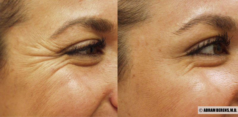Eliminate  Crows feet   from £123
