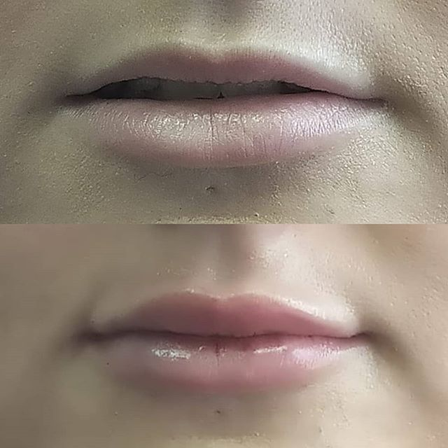 Smoothed out and fuller lips! . . . #skincare #botoxtreatment #skinbotox #radiantskin #youthful #skincare #softskin #skincaretips #healthyskin #facialtreatment #beautifulskin #filler #beauty #restylane #juvederm #dysport #skincare #allergan #collagen #antiaging #fillers #cosmeticsurgery #enhancements #lipaugmentation #aesthetics #antiaging #beauty #lipenhancement #cosmetics #beforeandafter