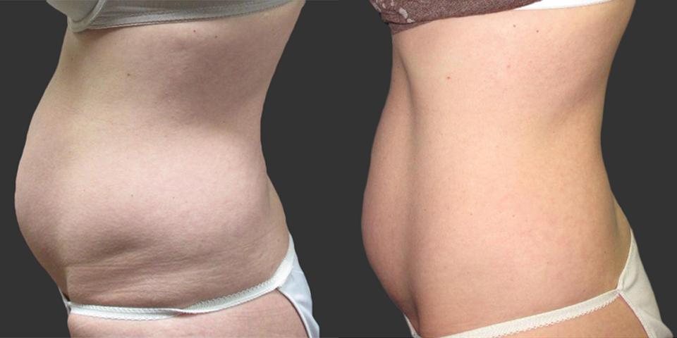 Body Contouring -