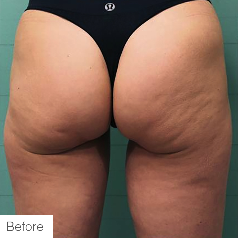 Cellulite Reduction in Legs - Before Image