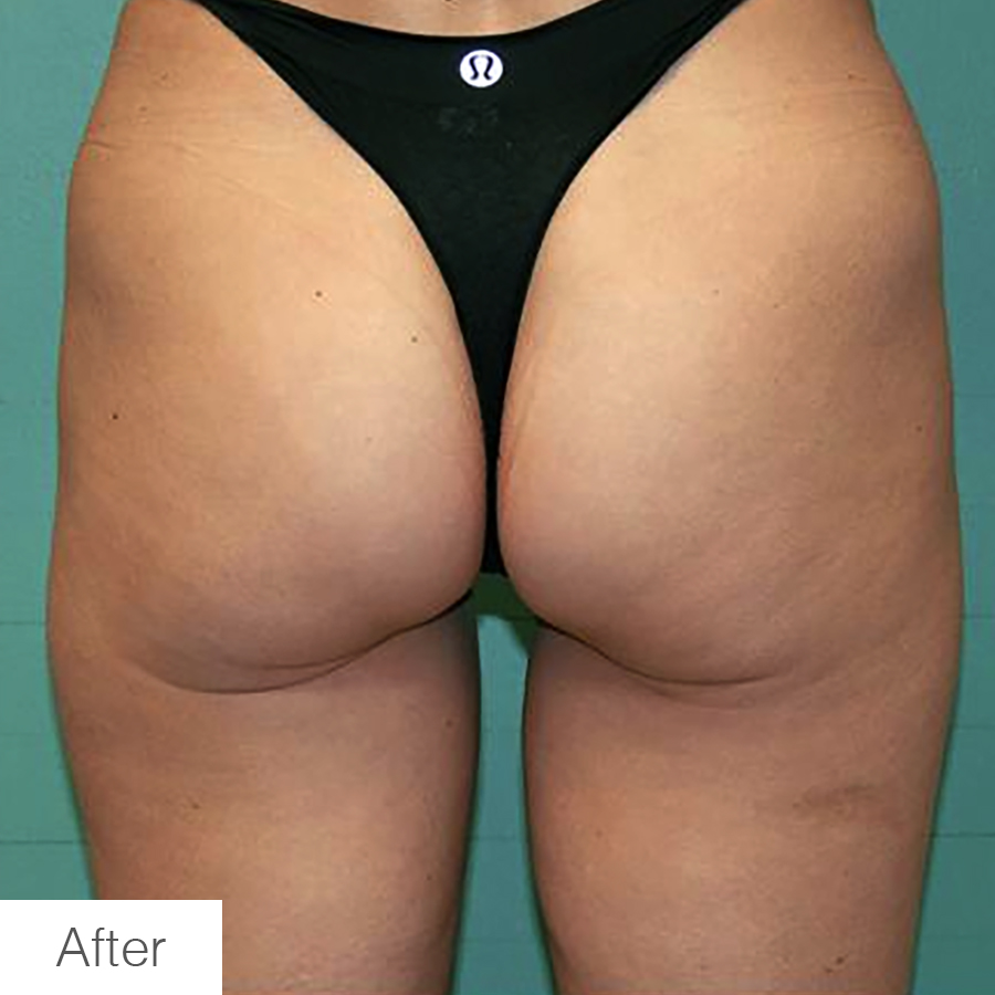 Cellulite Reduction in Legs - After Image showing results
